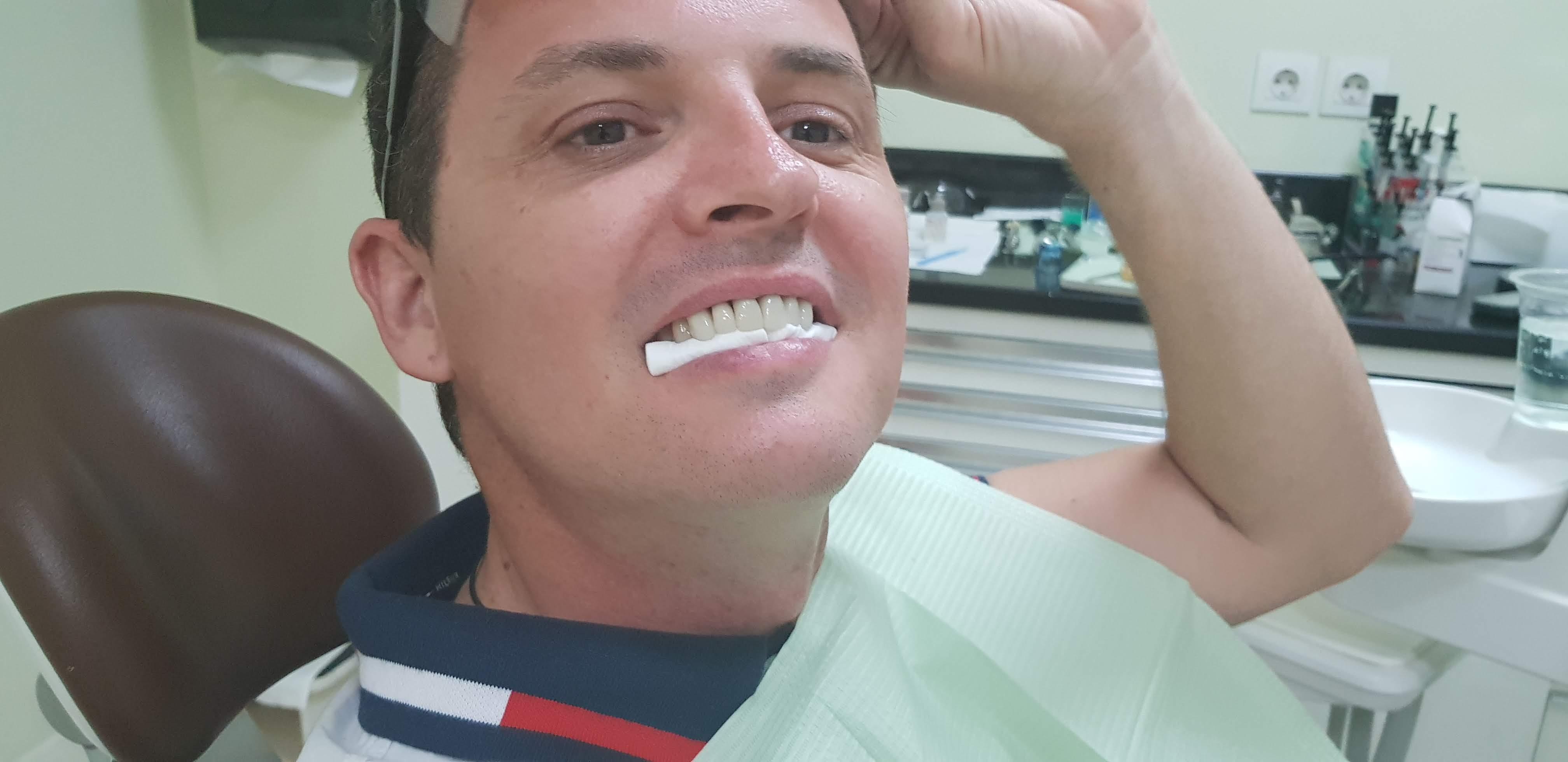 dental work veneers crowns teeth bali video before after arc