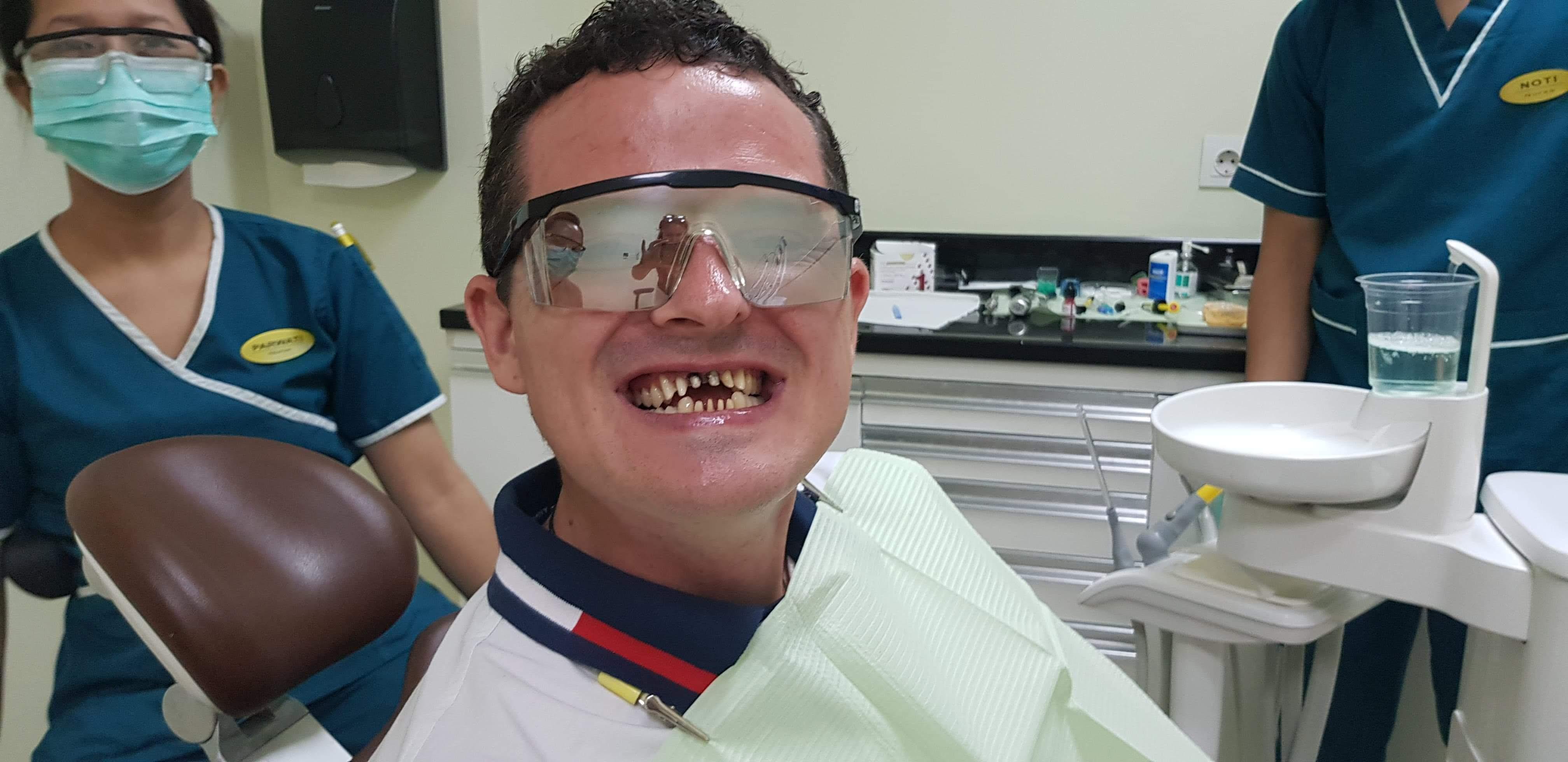 dental work veneers crowns teeth bali video before after during