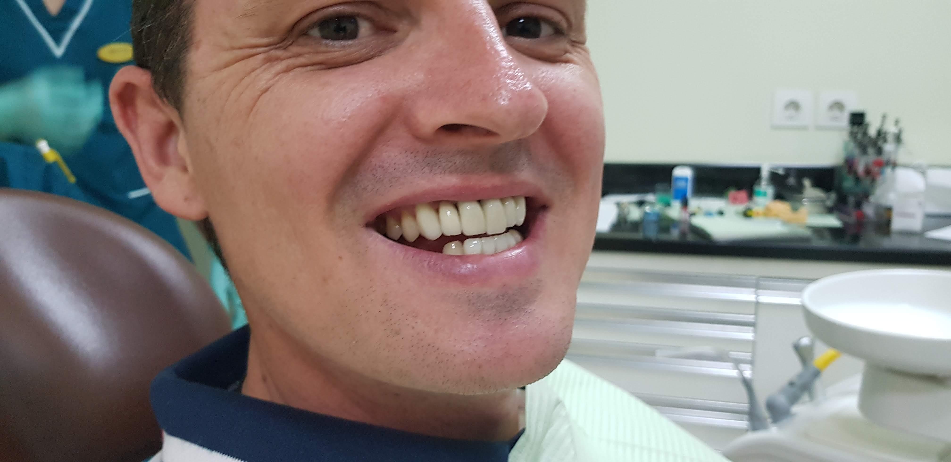 dental work veneers crowns teeth bali video before after